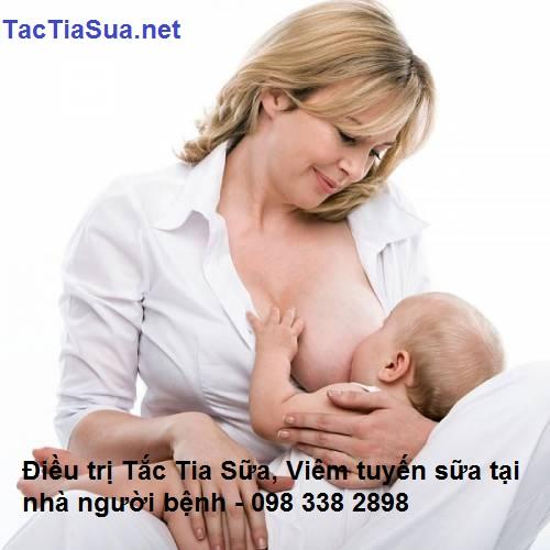 điều trị tắc tia sữa