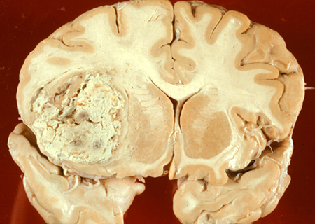 Thử nghiệm thành công vắcxin trị liệu chống ung thư não