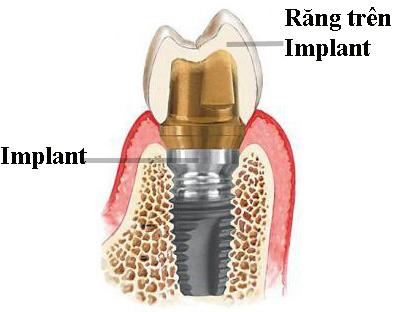 Implant là gì?