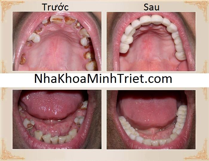 Răng trước và sau khi phục hình răng sứ