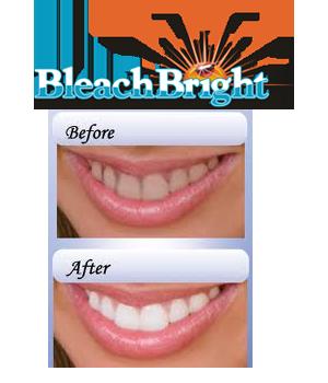Vài điều bạn cần biết về Tẩy trắng răng
